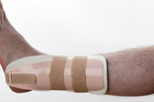 How an Orthopaedic Surgeon Can Help You With Foot Fractures