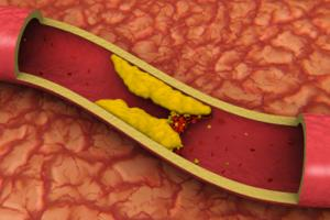 How to Control LDL or 'Bad' Cholesterol in Your Life