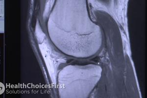MRI Scans for Knee Injuries and When They Are Important