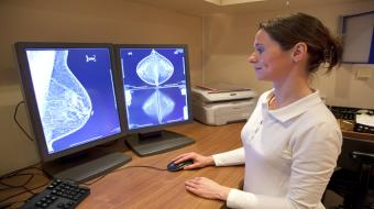 breasts mammography images