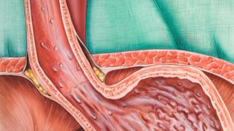 Dr. Duncan Miller, B. Sc, MD, discusses gastroesophageal reflux disease and heartburn.