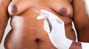 Dr. Jason Rivers, MD, FRCPC, discusses Who is Eligible for Body Contouring.
