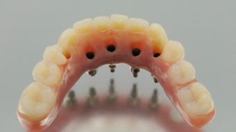 Procedures for Dental Implants
