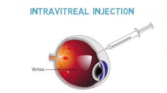 screenshot intravitreal injections the procedure