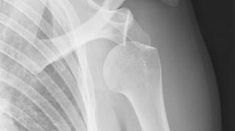 shoulder dislocation icesports