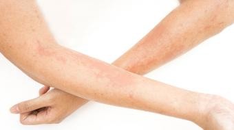 skin atopic dermatitis on arms