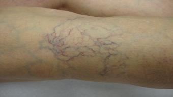 What are your Varicose Vein Treatment Options