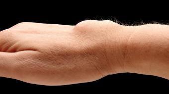 Ganglion Cyst of the Wrist