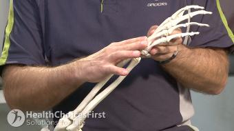 Dr. Bert Perey, MD, FRCPC, Orthopedic Surgeon, discusses carpal tunnel syndrome symptoms, diagnosis and treatment.