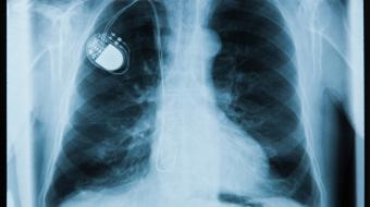 Dr. Kevin Pistawka, MD, FRCSC, Cardiologist, discusses What is a Defibrillator for the Heart ?